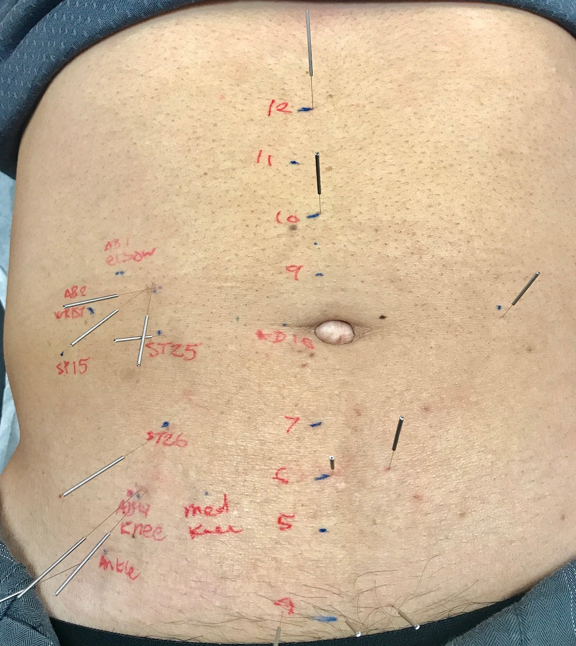 Abdominal Acupuncture | Tripoint Holistic Therapy